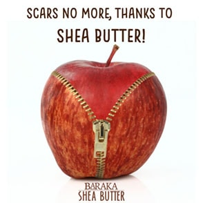Scars No More, Thanks to Shea Butter!